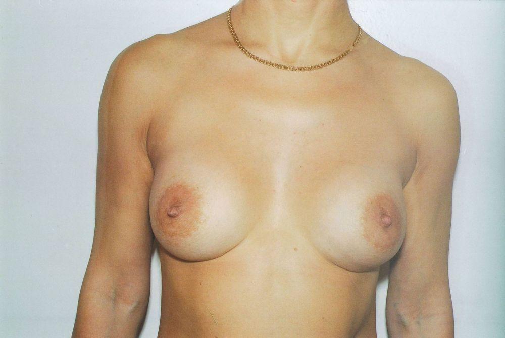 Гормонозамещение после операции по удалению матки и